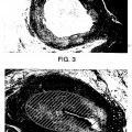 Ilustración 3 de Una elastasa para abrir conductos biológicos obstruidos.