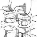 Ilustración 1 de Endoprótesis de rodilla.