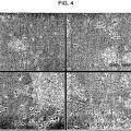 Ilustración 3 de Uso de una composición que contiene células madre mesenquimatosas derivadas de sangre de cordón umbilical humano para inducir diferenciación y proliferación de células precursoras neurales o células madre neurales a células neurales.