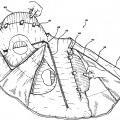 Ilustración 4 de Prenda adaptada para asociarse con un elemento de protección inflable.
