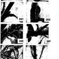 Ilustración 1 de Vectores de expresión virales de plantas y uso de los mismos para generar variaciones genotípicas en genomas de plantas.