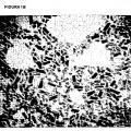 Ilustración 2 de Procedimiento para la preparación de dióxido de titanio que tiene dimensiones nanométricas y forma controlada.