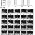 Ilustración 2 de Composición que comprende S-alil-L-cisteína como principio activo para prevenir o tratar lesiones de la mucosa gástrica inducidas por fármacos.